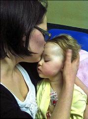 miracolo, bambino, bacio